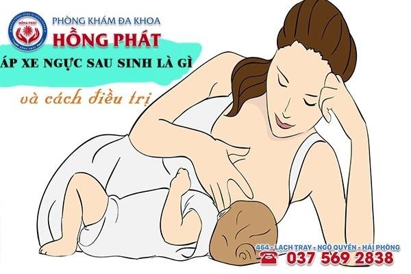 Áp xe ngực sau sinh là gì và cách điều trị