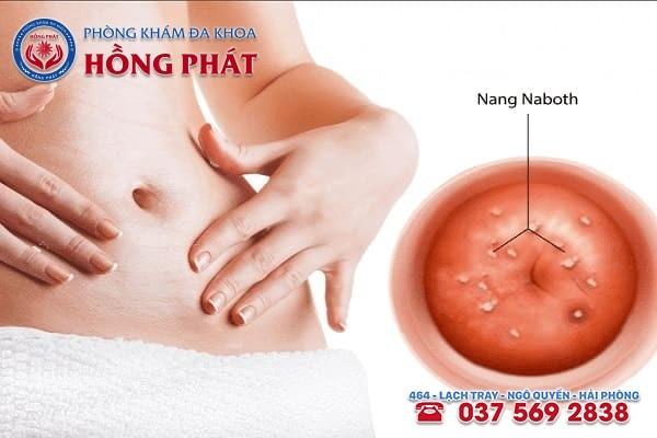 Nang Naboth là những khối u nhỏ, có mủ xuất hiện trên bề mặt cổ tử cung