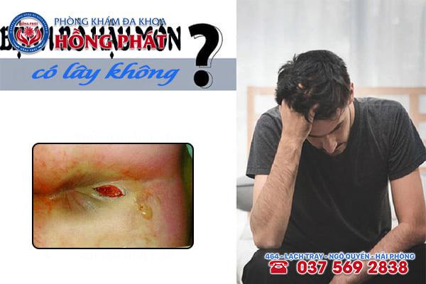 Bệnh rò hậu môn có lây không?