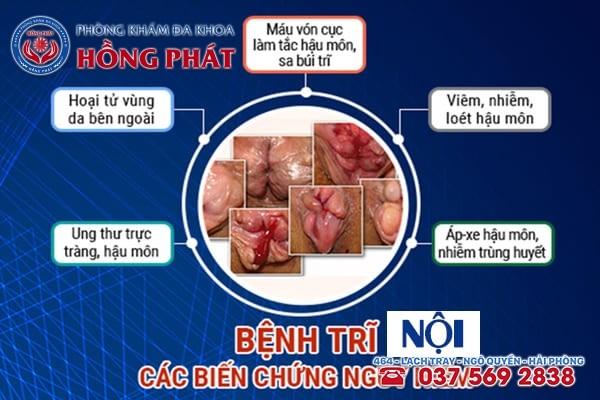 Những biến chứng nguy hiểm do bệnh trĩ nội gây ra