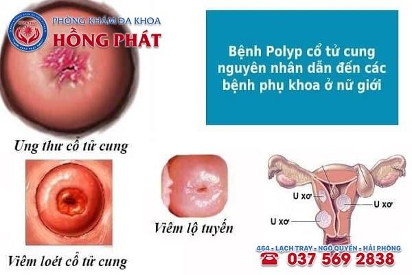 Bệnh polyp cổ tử cung gây ra nhiều tác hại đến cơ thể người phụ nữ