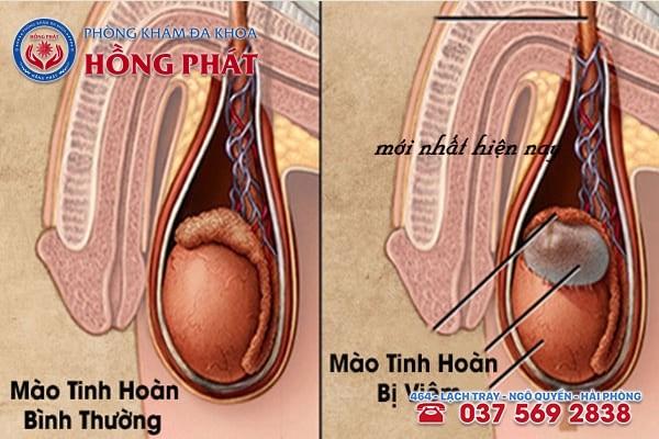Viêm mào tinh hoàn căn bệnh phổ biến ở nam giới
