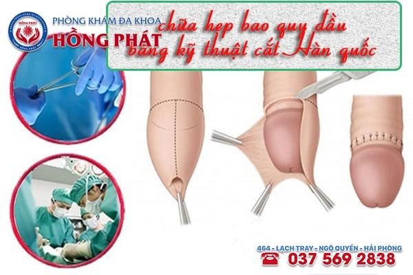 Chữa hẹp bao quy đầu bằng công nghệ cắt Hàn Quốc được nam giới lựa chọn ưu tiên