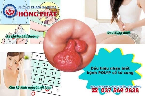 Dấu hiện nhận biết bệnh polyp cổ tử cung