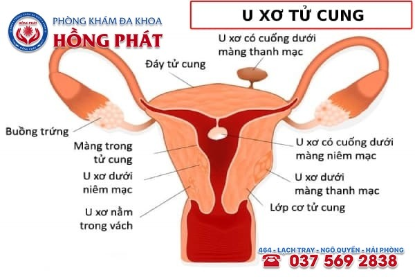 U xơ tử cung là bệnh lý phụ khoa phổ biến ở nữ giới hiện nay