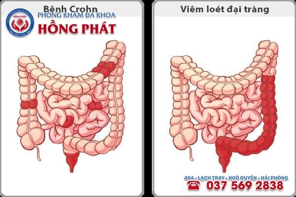 Bệnh viêm ruột là một trong những nguyên nhân gây ra đau bụng kinh nhưng không có máu