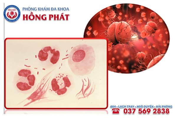 Vi khuẩn Gram âm có tên Neisseria gonorrhoeae gây bệnh lậu
