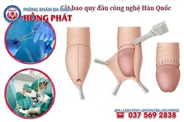Phương pháp cắt bao quy đầu hiện đại mới, an toàn, có tính thẩm mỹ cao