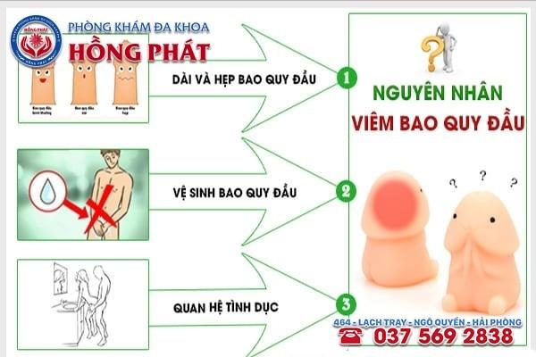 Nguyên nhân gây viêm bao quy đầu ở nam giới