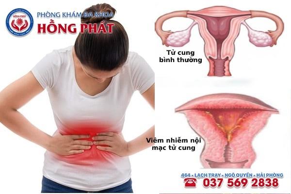 Điều trị bệnh viêm nội mạc tử cung sau sinh
