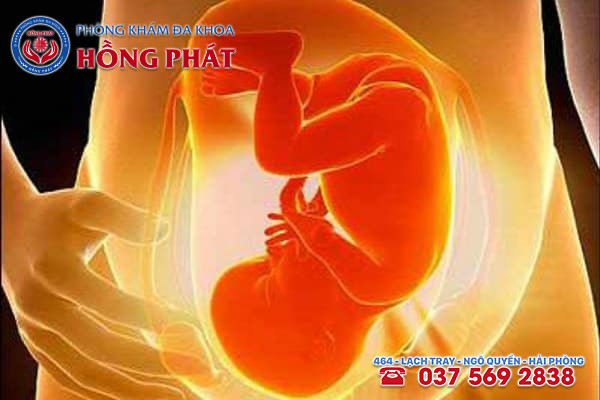 Thai lưu là tình trạng thai nhi chết giữa chừng do một sự tác động nào đó