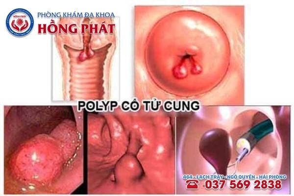 Có 2 nguyên nhân chủ yếu gây ra bệnh polyp cổ tử cung