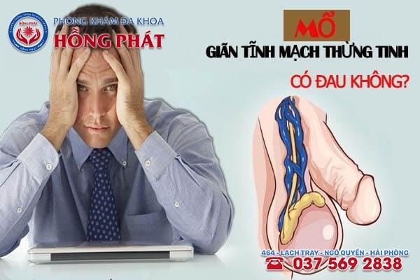 Mổ giãn tĩnh mạch thừng tinh có đau không?