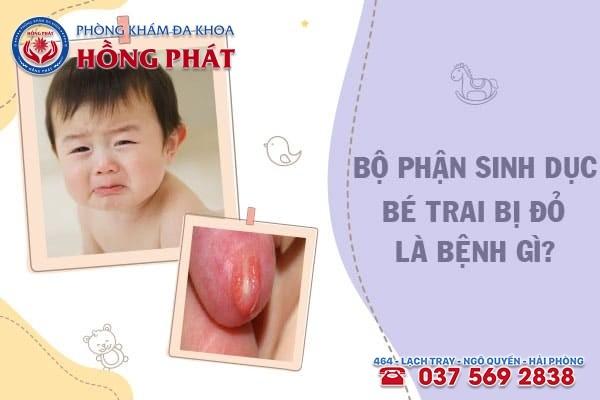 Bộ phận sinh dục của bé trai bị đỏ là dấu hiệu bệnh gì?