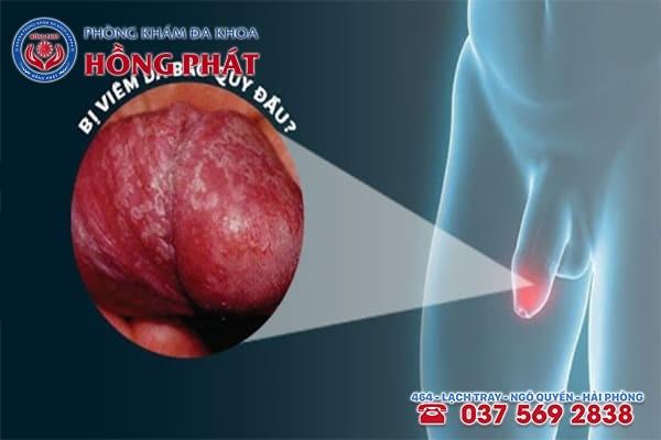 Lỗ sáo bị viêm và nổi mụn có thể là dấu hiệu của bệnh viêm bao quy đầu