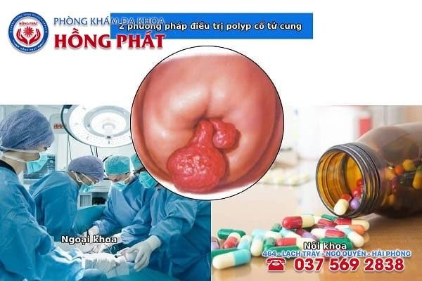 Dựa vào nguyên nhân polyp cổ tử cung để áp dụng liệu pháp điều trị phù hợp