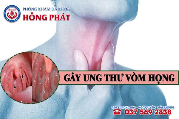 Bệnh lậu ở miệng sẽ biến chứng thành ung thư vòm họng nếu không khám điều trị bệnh sớm