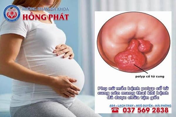 Nữ giới bị polyp cổ tử cung có mang thai được không?