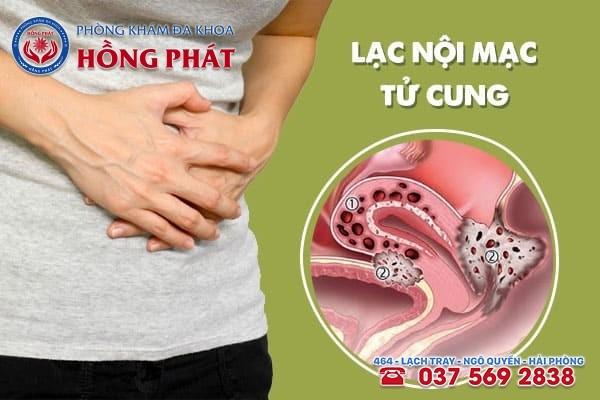 Bệnh lạc nội mạc tử cung là gì? Nguyên nhân và cách điều trị