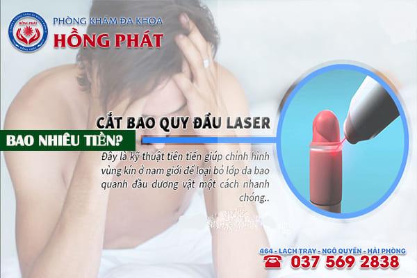 Phương pháp cắt bao quy đầu bằng laser bao nhiêu tiền