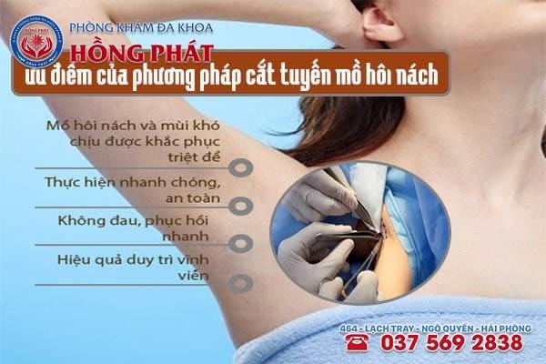 Những ưu điểm nổi trội của phương pháp cắt tuyến mồ hôi nách