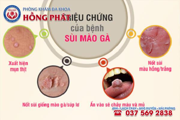 Những triệu chứng điển hình của bệnh sùi mào gà