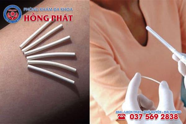 Tìm hiểu về phương pháp tránh thai cấy que dưới da