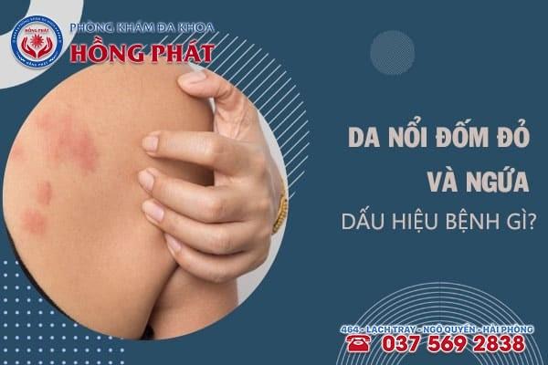 Bị nổi đốm đỏ trên da và ngứa là dấu hiệu của những bệnh lý nào