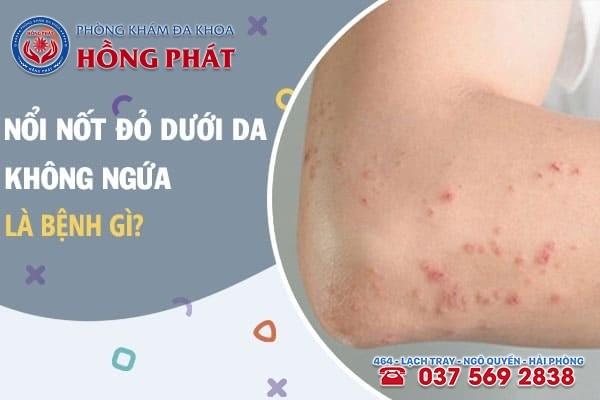 10 căn bệnh có thể gây ra nổi những nốt đỏ dưới da không ngứa