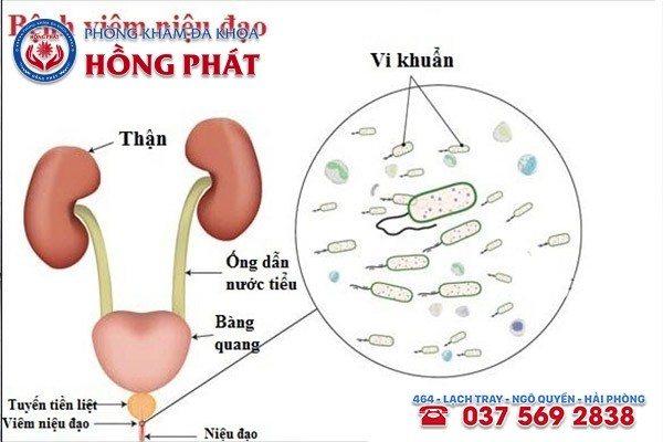 Tinh trùng có mùi hôi chính là dấu hiệu cảnh báo bạn đang mắc bệnh viêm niệu đạo