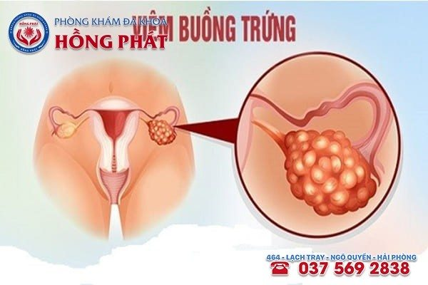 Tổng quan về bệnh viêm buồng trứng nữ giới