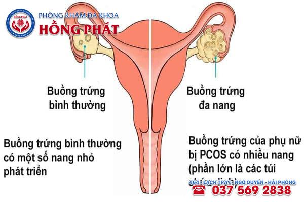 Có nhiều nguyên nhân dẫn đến tình trạng trứng không rụng ở nữ giới